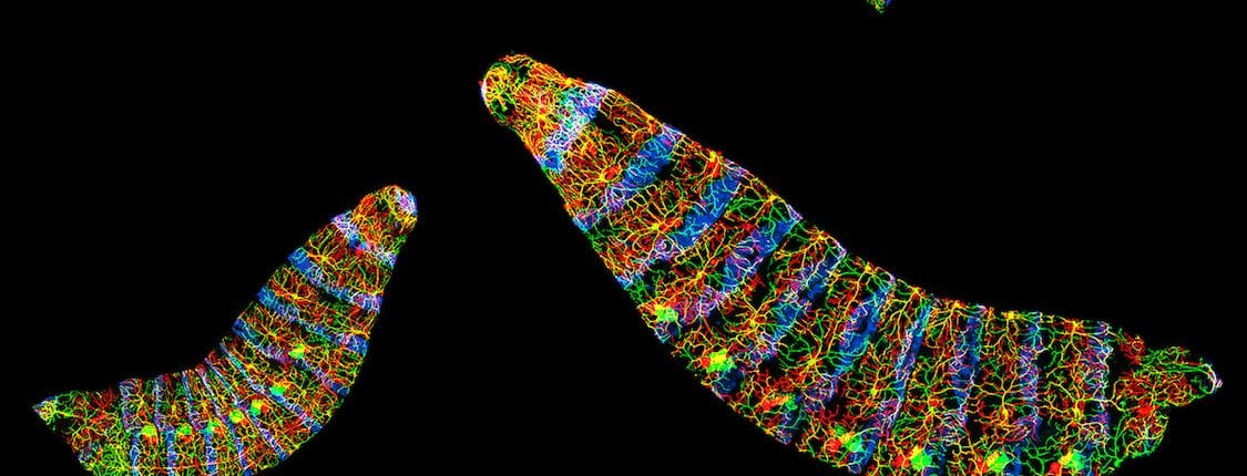 Live Drosophila larvae with two classes of dendritic arborization sensory neurons labeled by fluorescent markers (green and red).